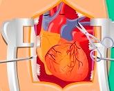 Операция на сердце 2